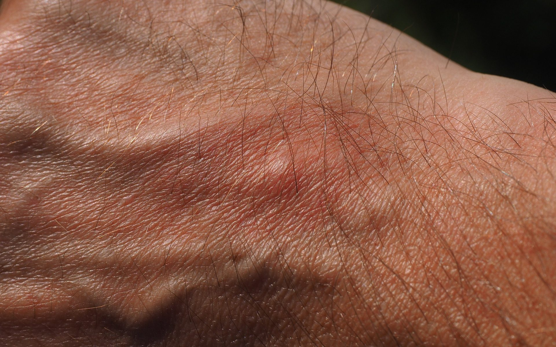 close up mosquito bite on mans hand Stokes Mosquito and Outdoor Pest Service Augusta GA Aiken SC